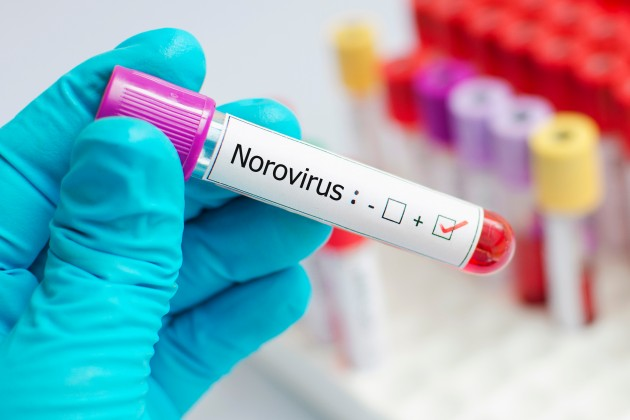University Hospital Galway seeks the co-operation of the public to prevent spread of Norovirus